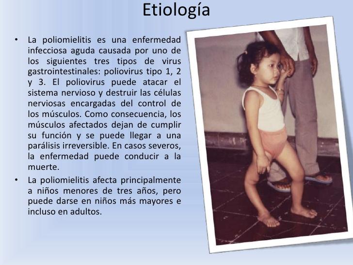 etiologia-poliomielitis