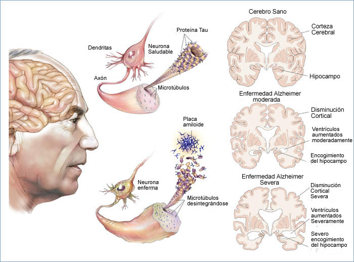 fases del Alzheimer
