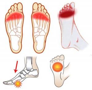 Los dolores en los pies