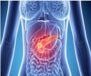 Tratamientos para el cáncer de páncreas