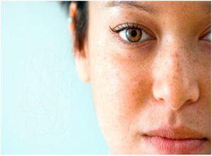 Tipos de manchas de la cara