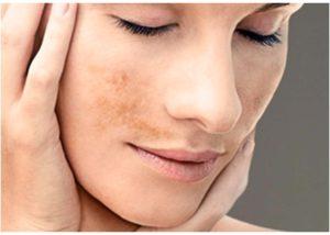 Cómo prevenir las manchas de la cara