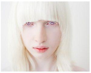 Síntomas del albinismo